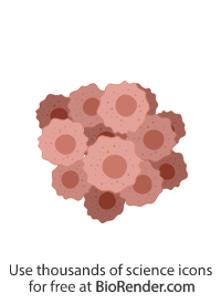 a cluster of cancer cells, each with a large nucleus and cytoplasm