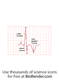 AHCM labelled ECG tracing