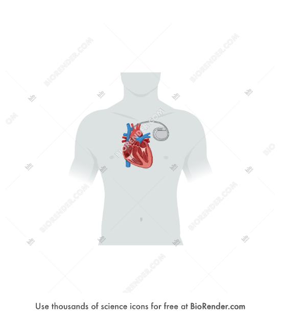 BioRender | Heart (cross-section, pacemaker, torso)